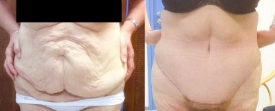 body shaping abdominoplastia 2